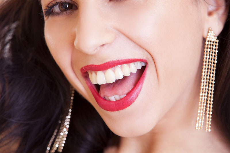 odontoiatria-estetica-parma